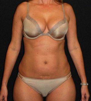 Tummy Tuck & Liposuction Case 42