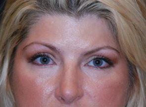 Eyelid Surgery Case 5