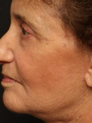 Laser Skin Resurfacing Case 53