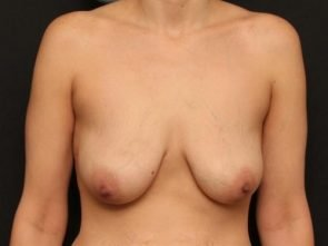 Breast Lift Case 54