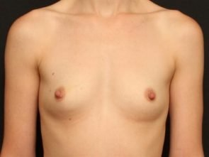 Breast Augmentation Case 57