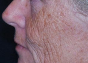 Laser Skin Resurfacing Case 6