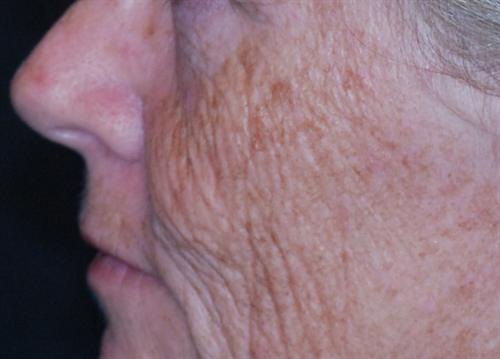 Laser Skin Resurfacing Case 6