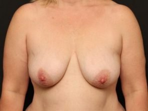 Breast Lift Case 62