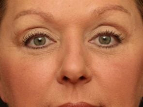 Eyelid Surgery Case 63