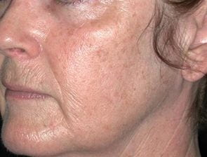 Laser Skin Resurfacing Case 7