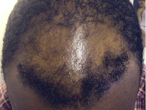 Hair Restoration Case 74
