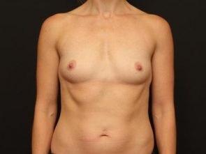 Breast Augmentation Case 89
