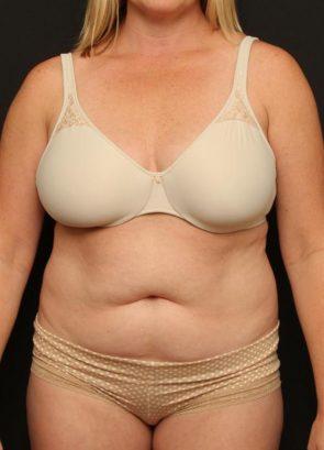 Tummy Tuck & Liposuction Case 90