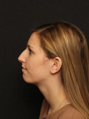 Rhinoplasty Case 93