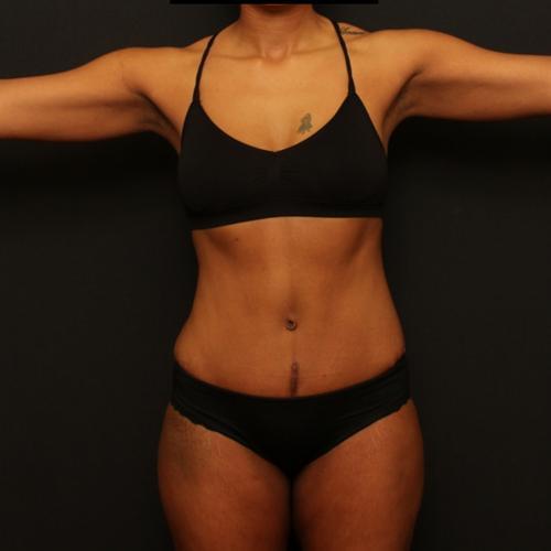 Tummy Tuck & Liposuction Case 95