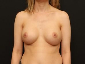 Breast Augmentation Case 96