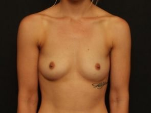 Breast Augmentation Case 99