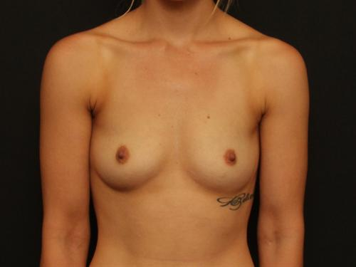 Breast Augmentation Case 99