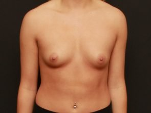 Breast Augmentation Case 17761