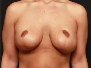 Breast Lift with Implants Case 17765