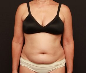 Tummy Tuck & Liposuction Case 17841