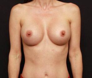 Breast Augmentation Case 17882