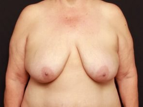 Breast Lift Case 17885