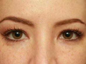 Eyelid Surgery Case 18211