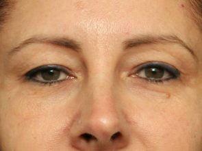 Eyelid Surgery Case 18238