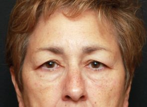 Brow Lift  and Eyelid Lift Case